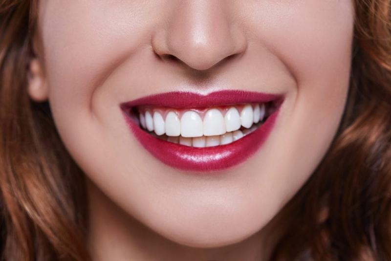 لمینت کردن دندان چیست