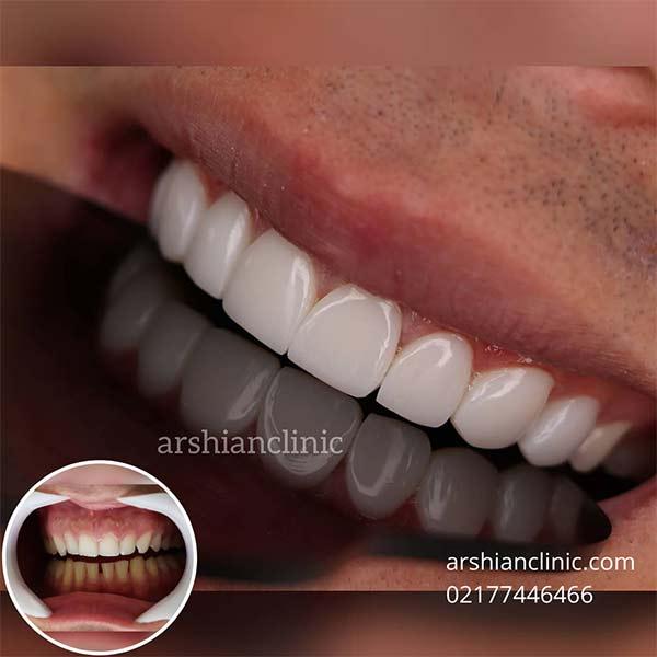 آسیب کامپوزیت به دندان