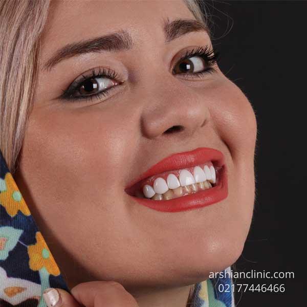روش سفید کردن کامپوزیت دندان