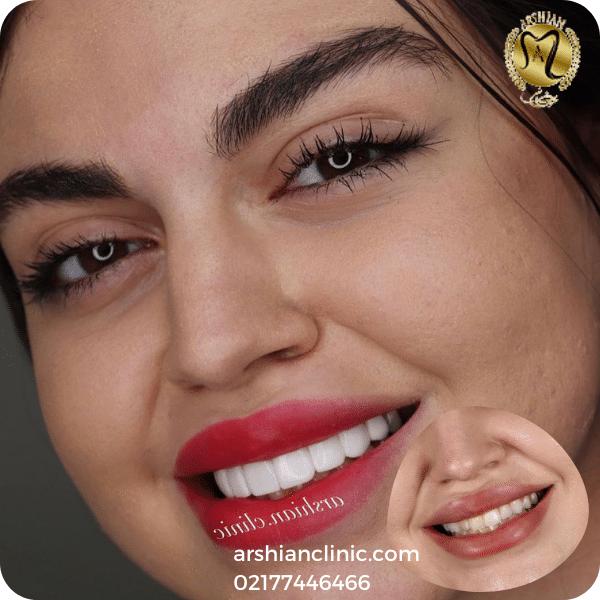 مراحل انجام کامپوزیت دندان (2)