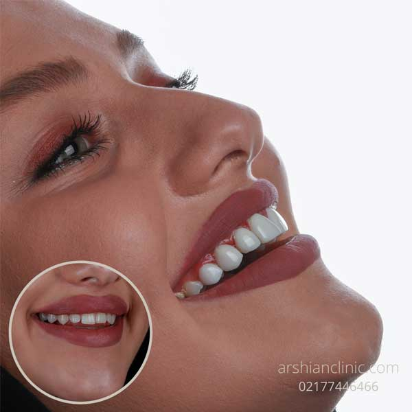 بهترین مارک کامپوزیت دندان