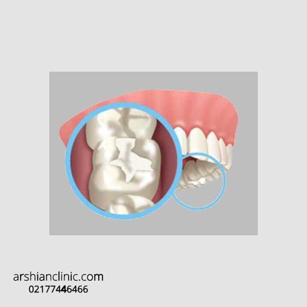 پر کردن دندان با کامپوزیت