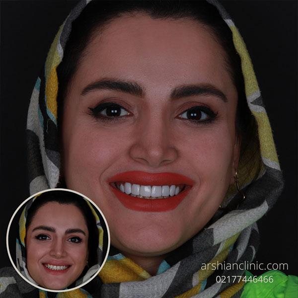 دندانپزشکی شبانه روزی شرق تهران