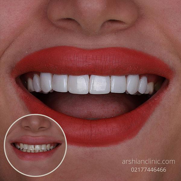 بهترین دندانپزشکی شبانه روزی