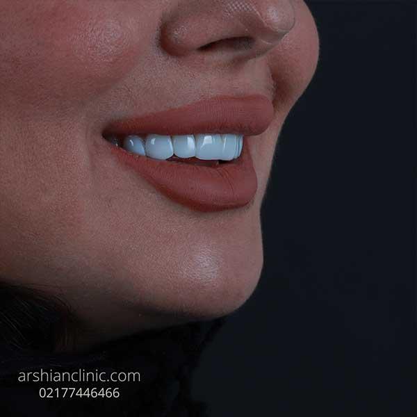 قیمت کامپوزیت دندان
