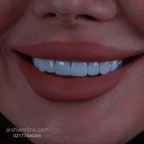 پرداخت اقساطی کامپوزیت دندان