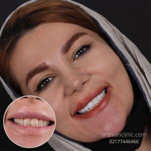 دندانپزشکی شبانه روزی کامپوزیت دندان