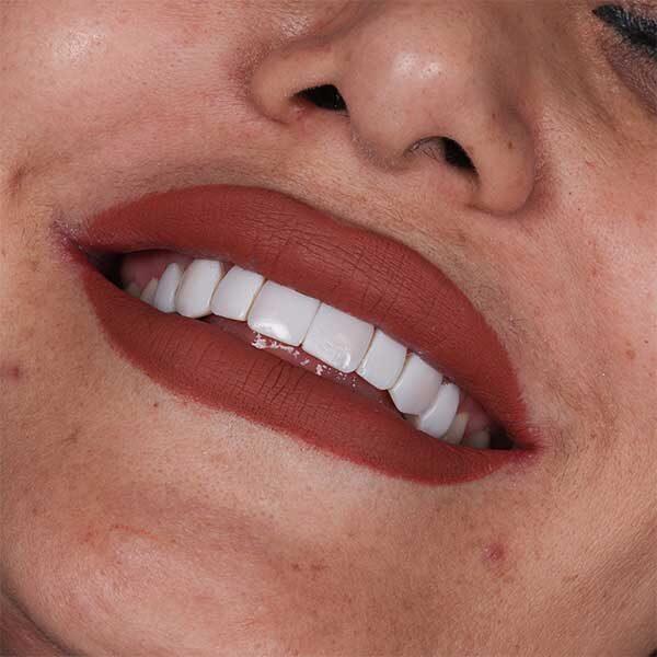 کامپوزیت دندان خرگوشی