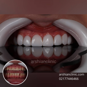 پر کردن دندان عقب با کامپوزیت