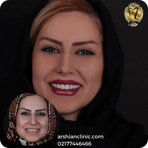 کامپوزیت دندان در شرق تهران