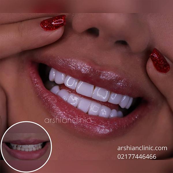 کلینیک کامپوزیت دندان